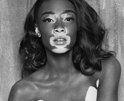 Radio B – Winnie Harlow (Produced By Chiveer)